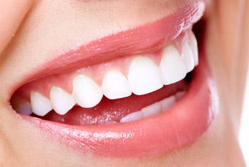 Ein schönes Lächeln – Strahlend weiße Zähne – Möglichkeiten der ästhetischen Zahnheilkunde