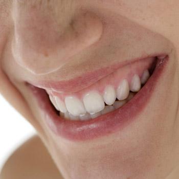 Das Ergebnis einer professionellen Zahnfarben-Aufhellung durch den Zahnarzt wirkt ästhetisch und natürlich.