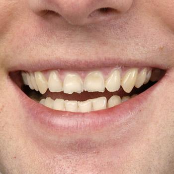 Veneers – Zahn-Verblendschalen – unschöne Zahnkante – vorher