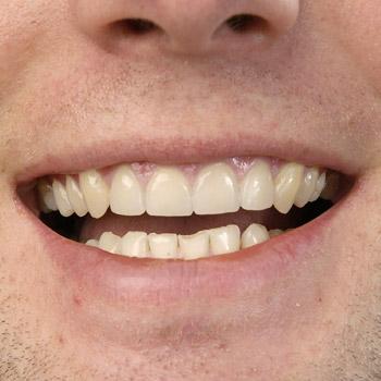 Veneers – Zahn-Verblendschalen – Ergebnis ist eine saubere Zahnkante – nachher