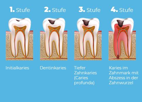 Illustration zeigt die 4 Stufen einer Karies-Erkrankung.
