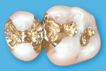 Gold-Inlays
