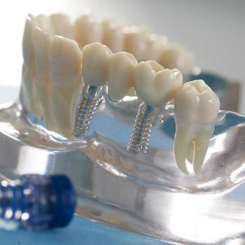 """Implantat-Modell, teilweise aus Klarsicht-Kunststoff mit """"echten"""" Zähnen und Implantaten."""
