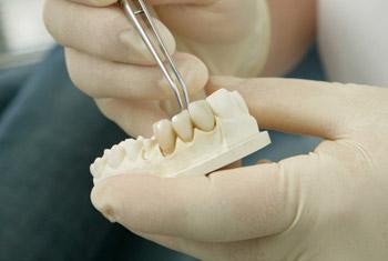 Ein Vollkeramischer Zahnersatz wird im Zahnlabor in das Abdruckmodell des Patienten eingepasst.