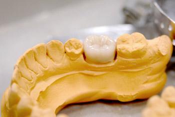 Abschluss der Arbeit im Zahnlabor: In einem Gipsmodell eingepasste Krone.