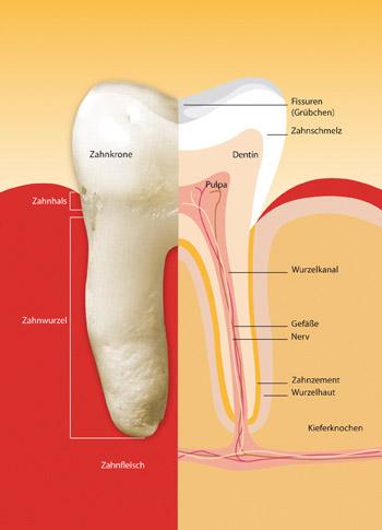 Illustration eines Zahnes – Zahnkrone: bestehend aus Zahnschmelz und Dentin – Zahnwurzel: Wurzelkanal und Nerven – Zahnfleisch und Kieferknochen