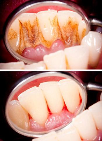 Vor einer Zahnreinigung sind deutliche, unschöne Ablagerungen an den Zähnen zu sehen. Danach sind diese Beläge komplett entfernt.