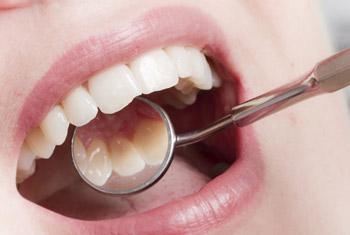 Untersuchung des Patienten durch den Zahnarzt; mit einem Spiegel kann er die Zahninnenseiten begutachten.