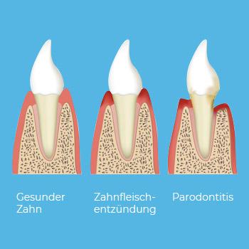 Illustration einer fortschreitenden Zahnfleischentzündung: Vom gesunden Zahn bis hin zur Parodontitis. Dabei bildet sich das Zahnfleisch immer mehr zurück.