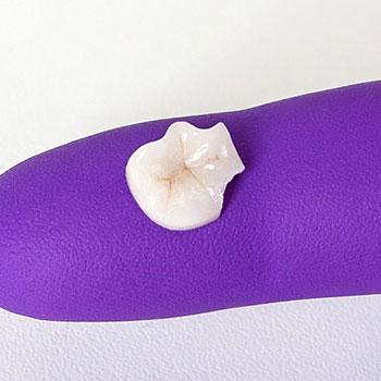Keramik-Inlay auf violettem Hygiene-Handschuh