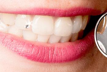 Patientin präsentiert stolz ihren neuen Zahnschmuck – ein kleines Steinchen