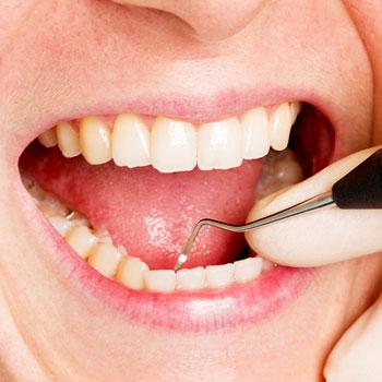 Bei einer Parodontose-Behandlung werden die Zahnfleischtaschen gesäubert