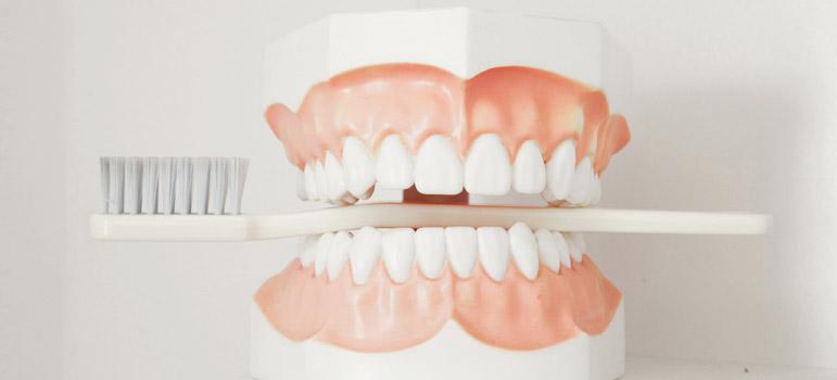 Großes Zahnputzmodell mit Zahnbürste zwischen den Zähnen